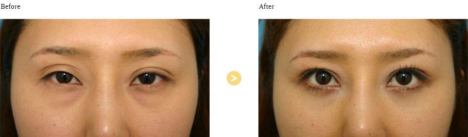 眼瞼下垂(重瞼修正)の症例