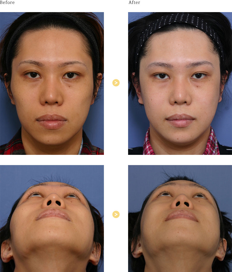 頬骨形成術の症例