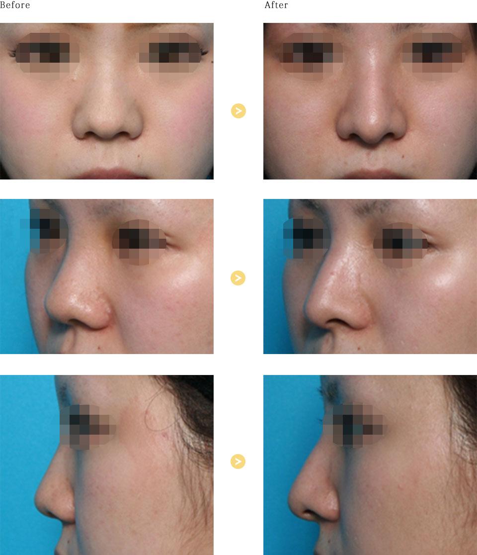 鼻中隔延長の症例
