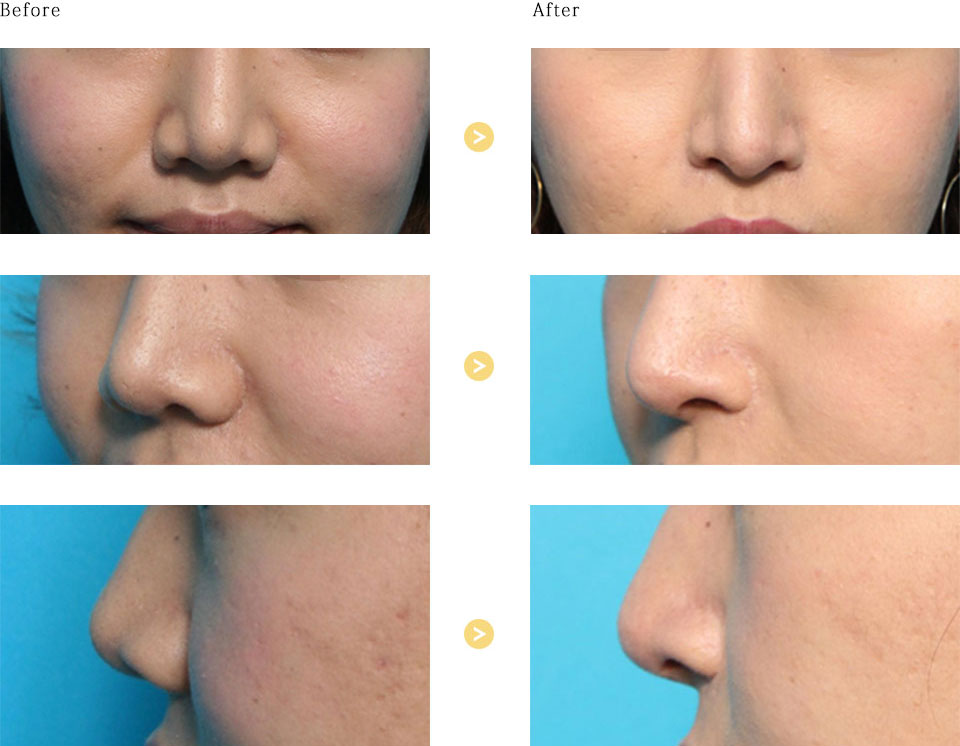 鼻翼拳上の症例