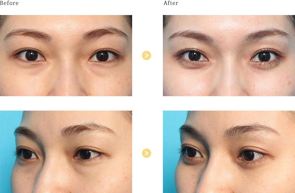 下眼瞼脱脂の症例