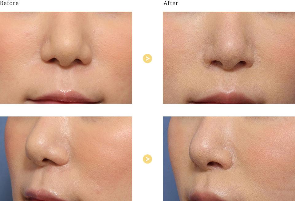 鼻孔縁挙上の症例