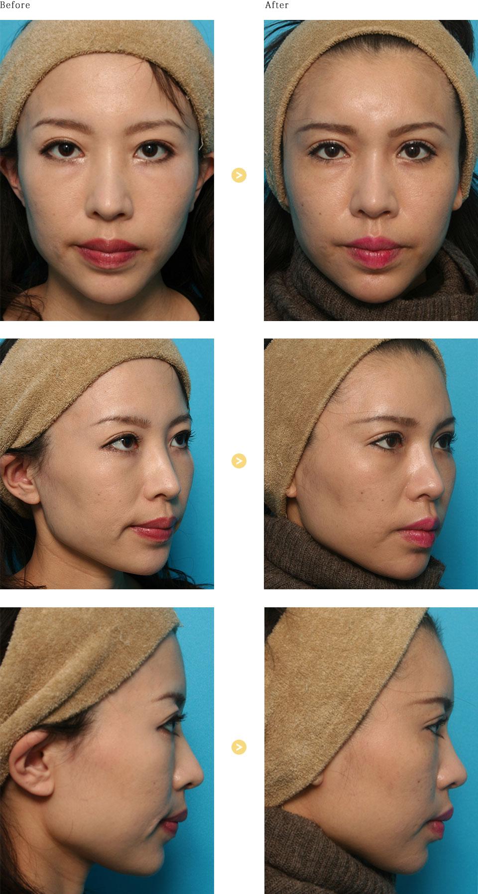 額と鼻のヒアルロン酸注入の症例