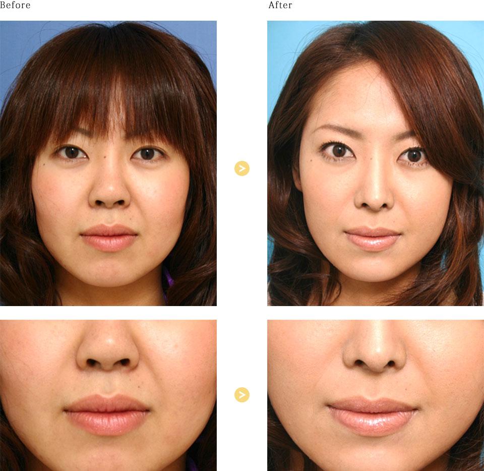 頬骨削り、頬脂肪吸引などの症例写真