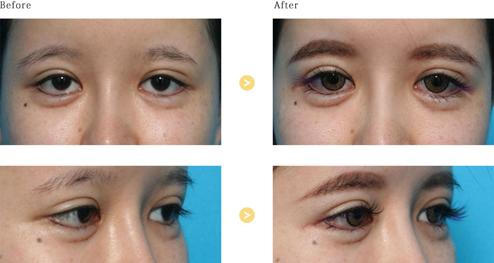 目尻外角靭帯移動術の症例