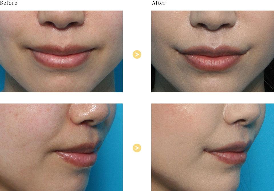 口角挙上の症例
