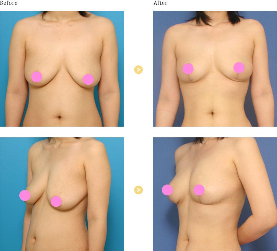 乳房つり上げ術の症例