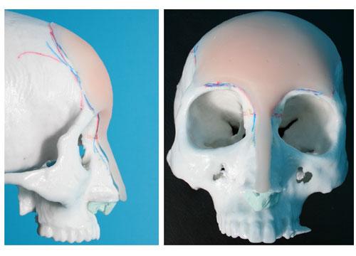 額と眉間と鼻筋のシリコンプロテーゼ