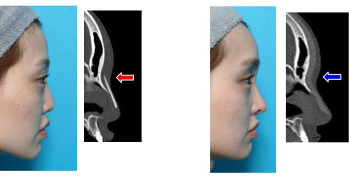 修正手術後の比較