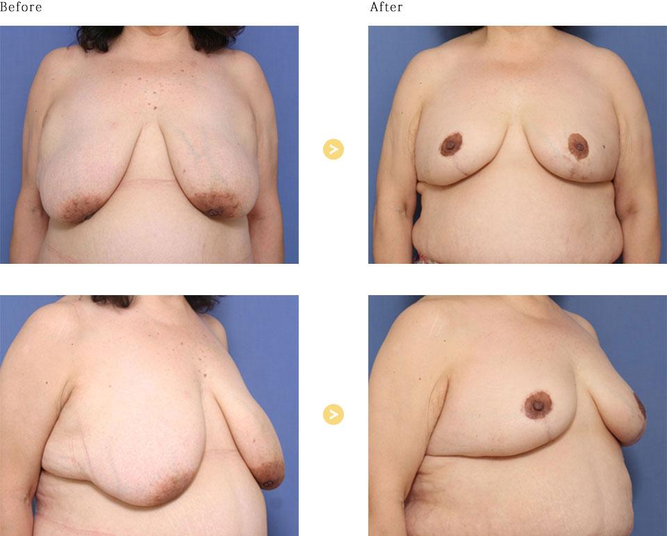 乳房縮小の症例
