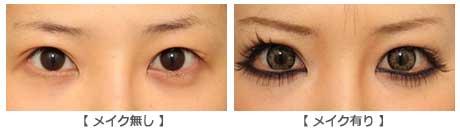 眼瞼下垂の修正