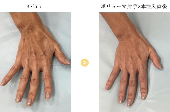 ヒアルロン酸の注入箇所(手の甲)