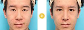 眼瞼下垂-040、鼻中隔延長-028