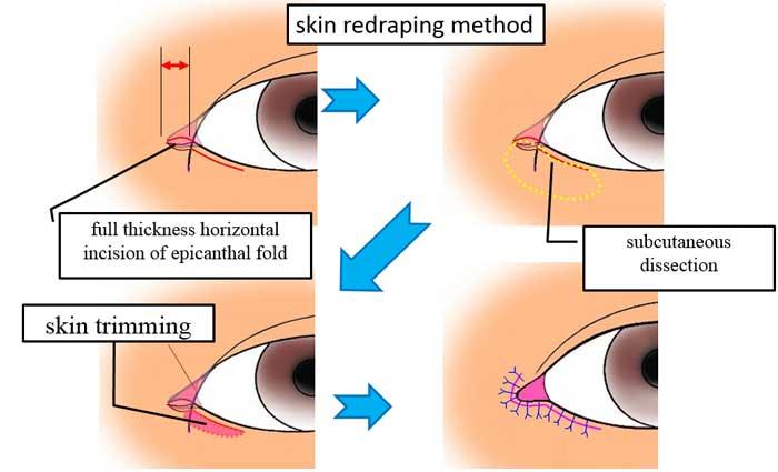 skin redraping method