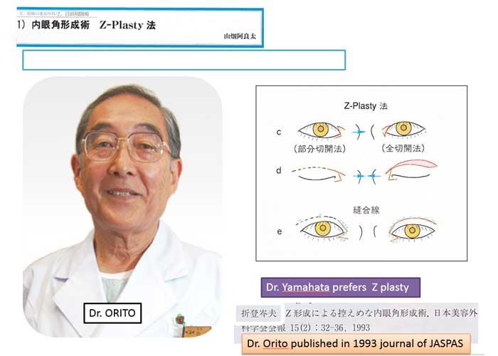 内眼角形成術 Z-Plasty法 Dr.ORITO