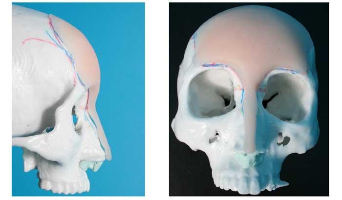 Silicon prosthesis
