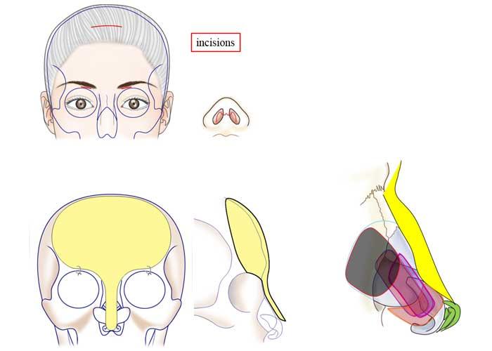 incisionsskull & nasal cartilage model