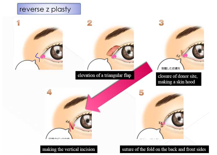 reverse z plasty1