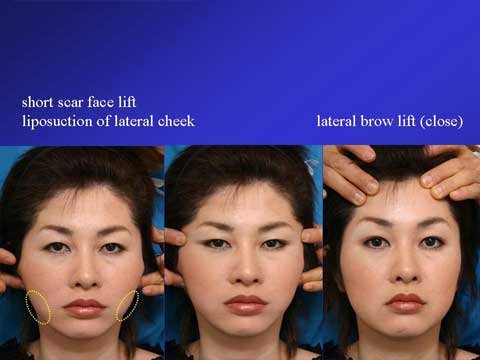 BOARD OF ASIAN COSMETIC SURGERY