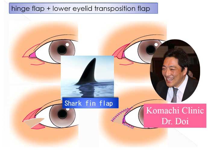 hinge flap + lower eyelid transposition flap