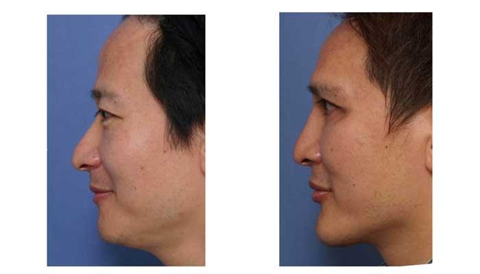 Profile postoperative in preoperation