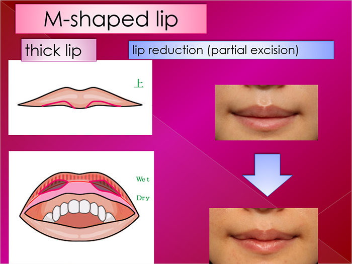 Lip plasty
