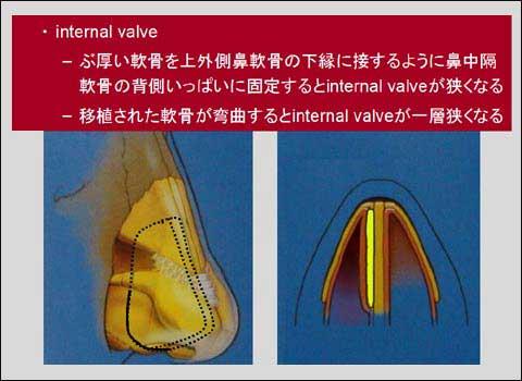 slide 12