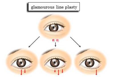 glamourous line plasty
