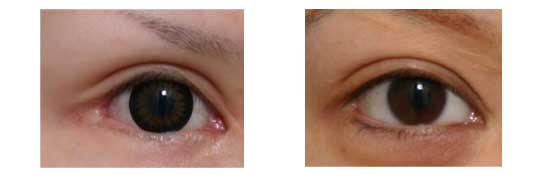 Adverse effect of lateral canthoplasty