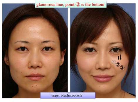 glamorous line; point ③ is the bottom upper blepharoplasty