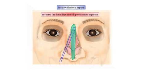 鼻孔縁形成術の説明スライド