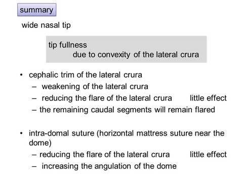第101回 鼻尖縮小術:軟骨の処理英語スライド2