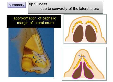 第101回 鼻尖縮小術:軟骨の処理をイラストでの紹介