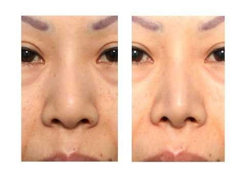 第101回 鼻尖縮小術:軟骨の処理 術前の症例写真