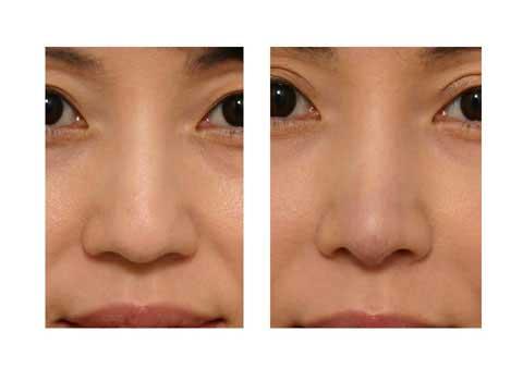 第101回 鼻尖縮小術:軟骨の処理 術後の症例写真