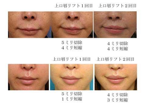 上口唇リフト(鼻下長修正術)の効果A