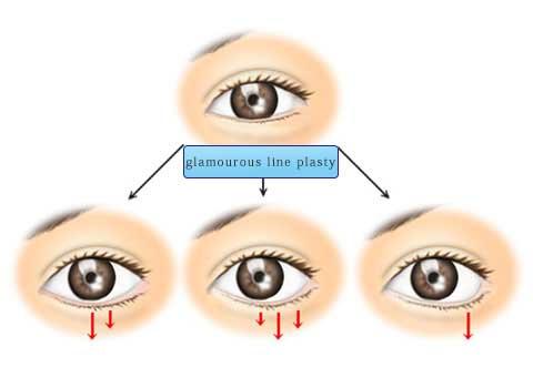グラマラスライン形成術の説明スライド