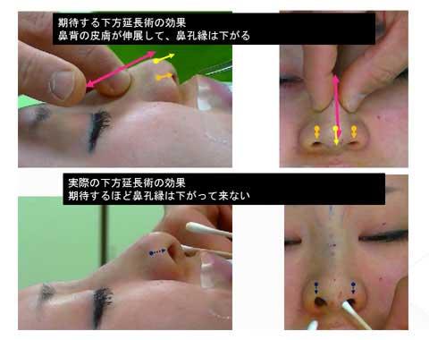 延長後鼻孔縁の変化を症例写真で解説スライド