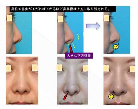 鼻孔縁が取り残される結果を症例写真にて解説