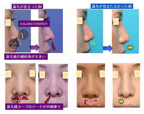 鼻孔が目立った症例と目立たなかった症例