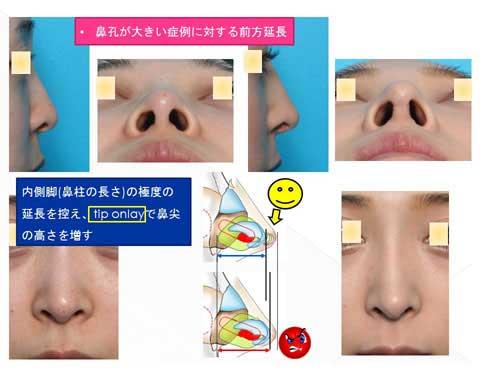 鼻孔が大きい症例に対する前方延長スライド説明