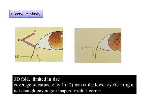 目頭の切開方法と縫合の解説スライド