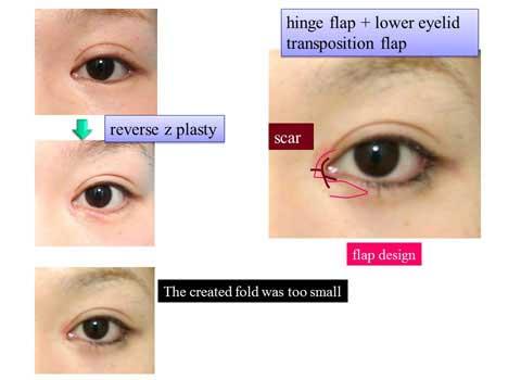 症例写真を使っての術式のスライド説明