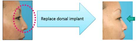 Replace dorsal implant
