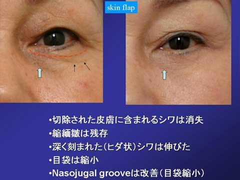 skin flap法の症例結果 1