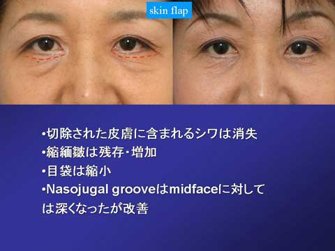 skin flap法の症例結果 2