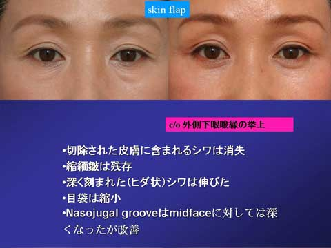 skin flap法の症例結果 3