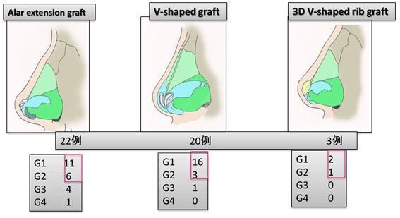 Alar extension graft,V-shaped graft,3D V-shaped rib graft