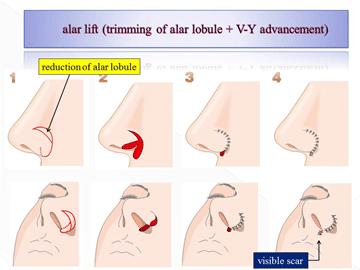alar lift(trimming lobule+V-Y advancement)