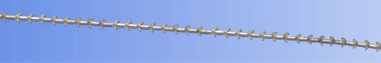 alar lift(trimming of alar lobule+V-Y advancement)1